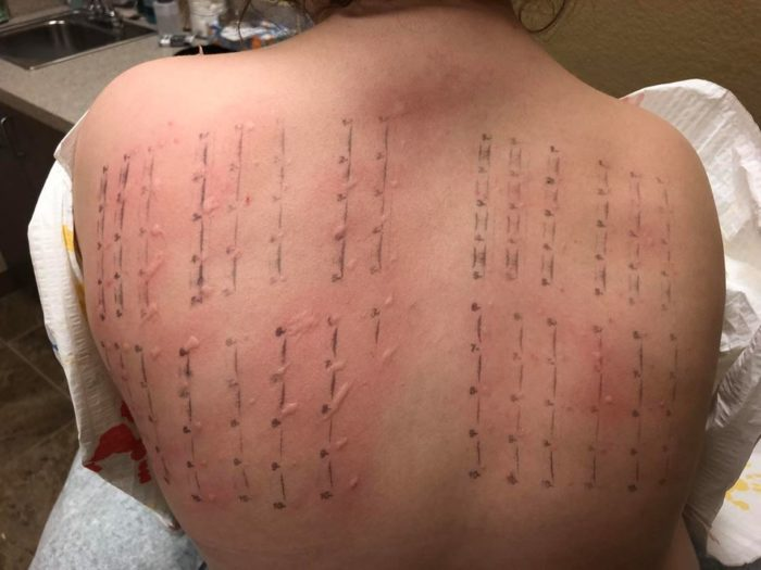 allergy test